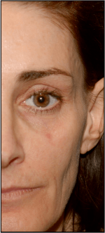Hollow temples after dermal fillers