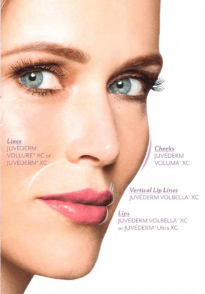 Juvederm illustration