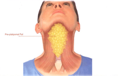 chin fat diagram general wiring diagram glands in chin kybella double chin treatment in edina, mn dr edward szachowicz diagram of glands under chin chin fat diagram