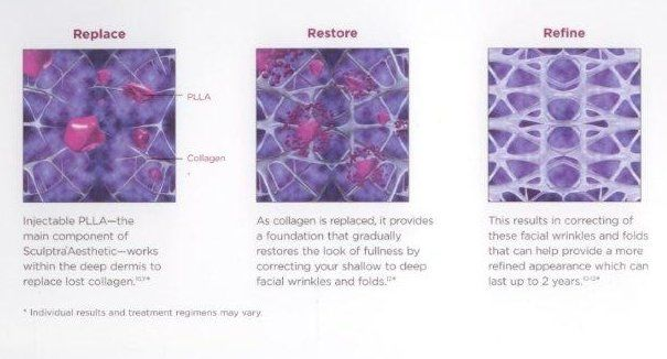Sculptra reshapes restores and refines