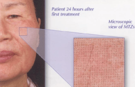 Patient after Resurfacing