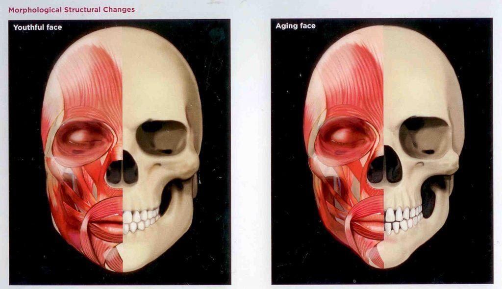 Facial skeleton illustrating jawline volume loss